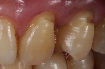 Em tempos de sensibilidade dentinária, o que fazer?