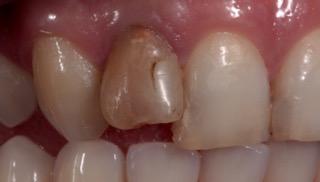 Clareamento de dentes desvitalizados