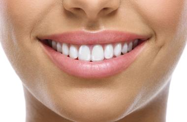 4 Razões Para Você Fazer o Selamento Imediato da Dentina