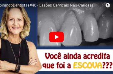 ID#40 – Lesões cervicais não cariosas